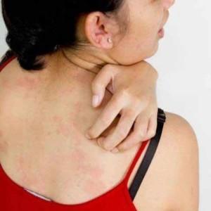 аллергические реакции на коже