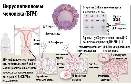 Вирус паппиломы человека
