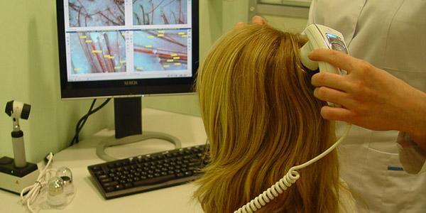 диагностика-причин-выпадения-волос