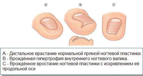Причины врастания ногтей