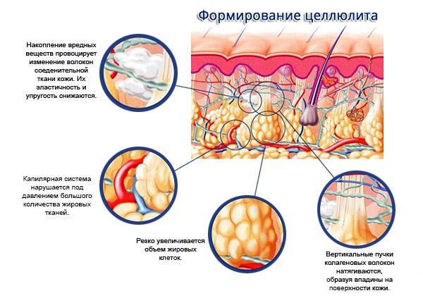 причины появления целлюлита