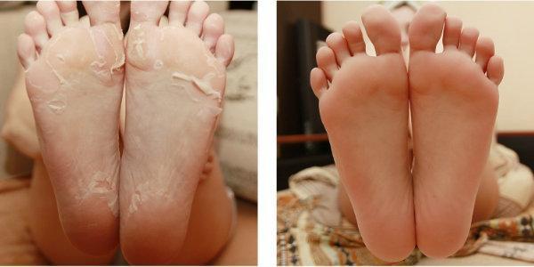 японских носочках для педикюра