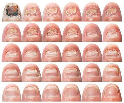 Лечение грибка ногтей народными средствами: самые эффективные