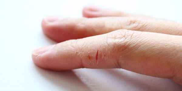 Трескается кожа на руках: каковы причины и как лечить это заболевание