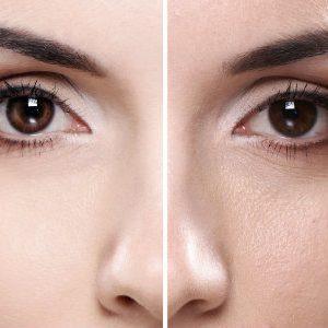 Зарядка от морщин и обвисания кожи лица: как сохранить или вернуть молодость