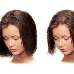 К какому врачу обращаться с проблемой выпадения волос