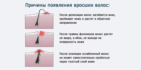причины появления-вросших-волос