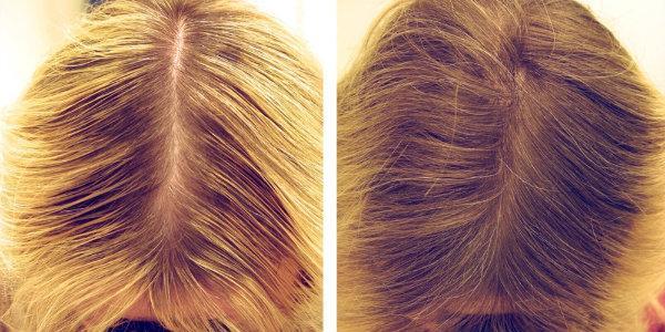 Мезотерапия для волос, показания, преимущества, показания