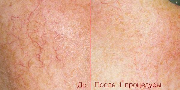 Удаление сосудов лазером на лице: особенности процедуры