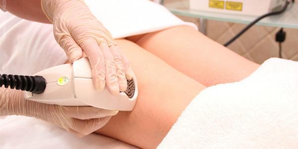 Сосудистые звездочки на ногах: причины и лечение