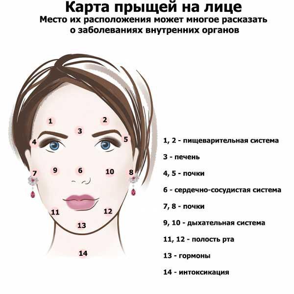 Причины, вызывающие прыщи на лбу у женщин и методики их лечения
